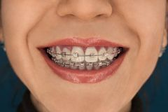 Face of the girl smiling with braces on her teeth against royalty free stock image