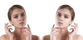 Face girl before and after, spa looking. Face girl before and after spa looking Royalty Free Stock Photography
