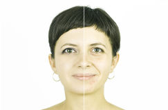 Face healing Stock Photos