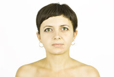Free Face Healing Royalty Free Stock Image - 27144086
