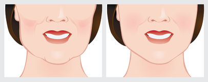 Face lift using dermal fillers Stock Photography