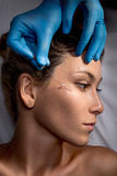 Face lifting-Chirurgie stockbild