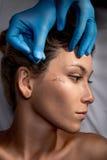 Face lifting-Chirurgie Stockbild