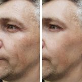 Face man wrinkles before and after. Procedure dermatology royalty free stock photo
