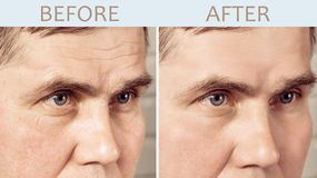 Face of a mature man before and after cosmetic rejuvenating procedures stock images