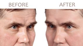 Face of a mature man before and after cosmetic rejuvenating procedures royalty free stock photography