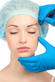 Face before plastic surgery operation Royalty Free Stock Photo