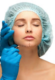 Face before plastic surgery operation Royalty Free Stock Photography