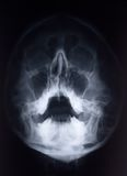 Face X-Ray. X-Ray film of face - frontal, looking up at mouth and nasal bones royalty free stock photos