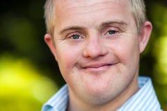 Face shot of handsome handicapped boy. stock images