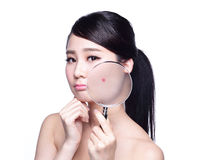 Face Skin Problem Royalty Free Stock Image