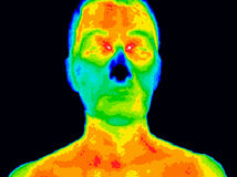 Face thermography. Thermographic image of a human face showing different temperatures in a range of colors from blue showing cold to red showing hot which can Stock Image