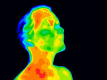 Face Thermograpy Carotid. Thermographic image of a human face and neck showing different temperatures in a range of colors from blue cold to red hot. Red in the Royalty Free Stock Photo