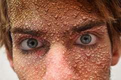 Face with waterdrops sweat. Man with water drops all over his face. Condensation and sweat stock images