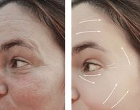 Face adult woman wrinkles crease on face before after procedures, arrow. Face woman adult wrinkles on face before and after procedures, arrow swelling crease stock photo