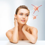 Face of woman with dry skin Stock Photography