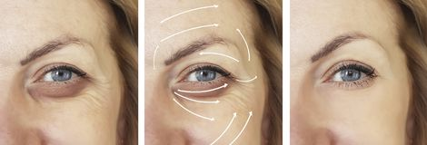 Face, woman, wrinkles, effect difference patient contrast correction before and after procedures, arrow. Face, woman wrinkles correction before and after stock image