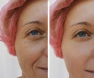 Face woman wrinkles patient dermatology before and after cosmetic anti-aging procedures. Face woman wrinkles before after cosmetic anti-aging procedures patient royalty free stock images