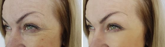 Face woman wrinkles eyes before and after royalty free stock image
