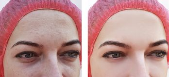 Face woman, wrinkles of eyes before and after procedures. Face woman, wrinkles of eyes before after procedures therapy stock images