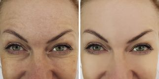 Face woman wrinkles eyes contrast before and after royalty free stock image