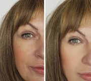 Face woman wrinkles before and after lifting results  cosmetology therapy. Face woman wrinkles before and after hyaluronic acid hydrating cosmetology therapy Stock Photos