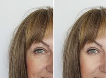 Face woman wrinkles before and after procedures  effect removal. Face woman wrinkles before and after procedures biorevitalization removal effect Royalty Free Stock Photos