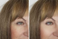 Face woman wrinkles before and after procedures. Biorevitalization Royalty Free Stock Photo