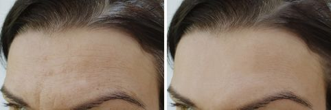 Face wrinkles forehead before and after. Procedure stock photography