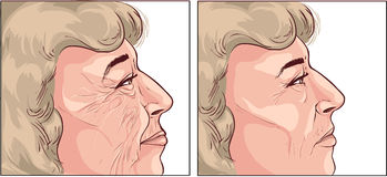 Face wrinkles. A vector image illustration (face wrinkles Stock Images