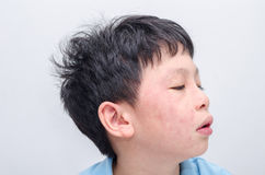 Face of young asian boy with rash Stock Photo