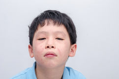 Face of young asian boy with rash Stock Photography