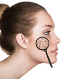 Face of young woman with dry skin. Stock Photo