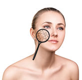 Face of young woman with dry skin. Stock Photography