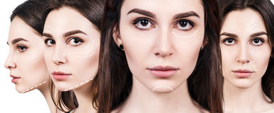 Faces of young woman with lifting arrows. Young beautiful woman with white arrows on her face. Face lifting concept Stock Photos