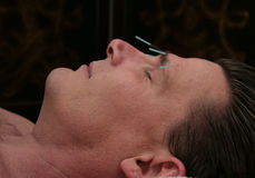 Facial Acupuncture. Man, mid-forties, receiving facial acupuncture treatment to address wrinkles Royalty Free Stock Photos