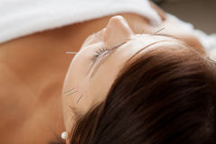 Facial Acupuncture Beauty Treatment Stock Photo