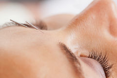 Facial Acupuncture. Macro detail of facial acupuncture treatment, shallow DOF focus on eye Royalty Free Stock Photos