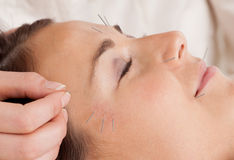 Facial Acupuncture Treatment Detail. Woman receiving facial acupuncture treatmant Royalty Free Stock Photography
