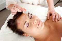 Facial Acupuncture Treatment Needle Stimulation. Needle being stimulated in face of young attractive patient Stock Image