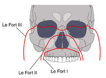 Facial fractures. Drawing of facial fractures showing the Le Fort classification Royalty Free Stock Image
