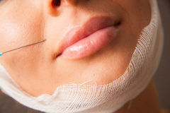Facial Injections Royalty Free Stock Photo