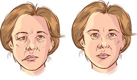 Facial lopsided illustration Stock Photos