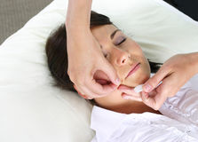 Facial needles. Acupuncture treatment with facial needles Royalty Free Stock Photography
