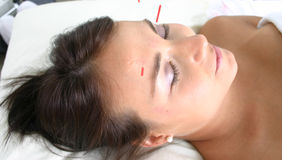 Facial needles. During acupuncture treatment Stock Photo
