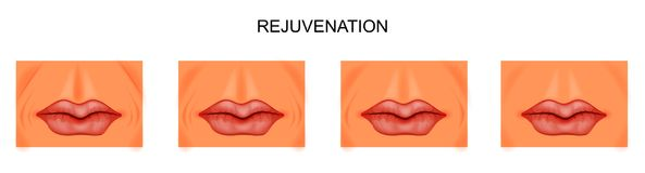 Facial rejuvenation, nasolabial folds Stock Images
