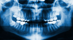 Facial x-ray Stock Photo