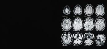 fahne MRI des Gehirns einer gesunden Person auf einem schwarzen Hintergrund mit grauer Hintergrundbeleuchtung Auf dem linken Plat lizenzfreies stockfoto