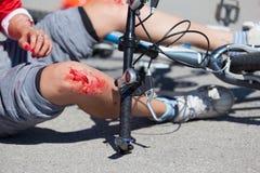 Fahrradfallverletzungen stockbilder