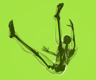 Fall of a human body seen on x-rays Royalty Free Stock Photography